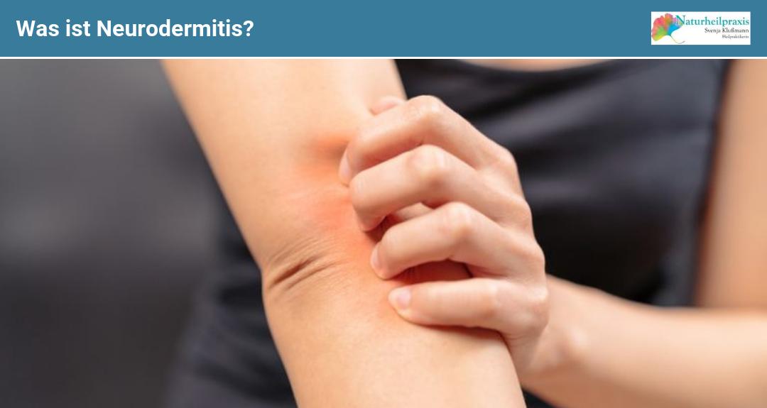 Was ist Neurodermitis?